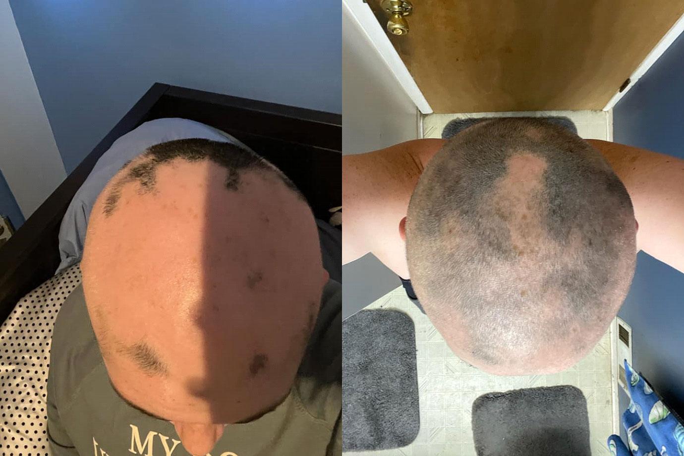 CBD-Alopecia-Cure